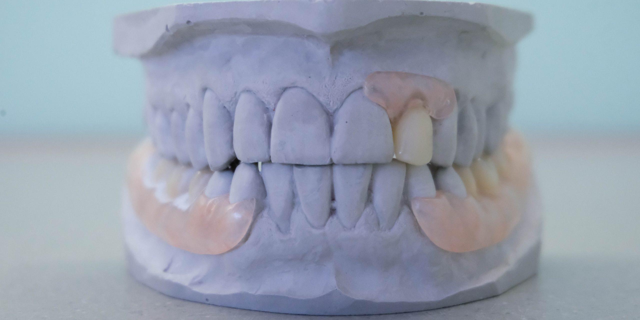 Prothese Zahnarzt Thun