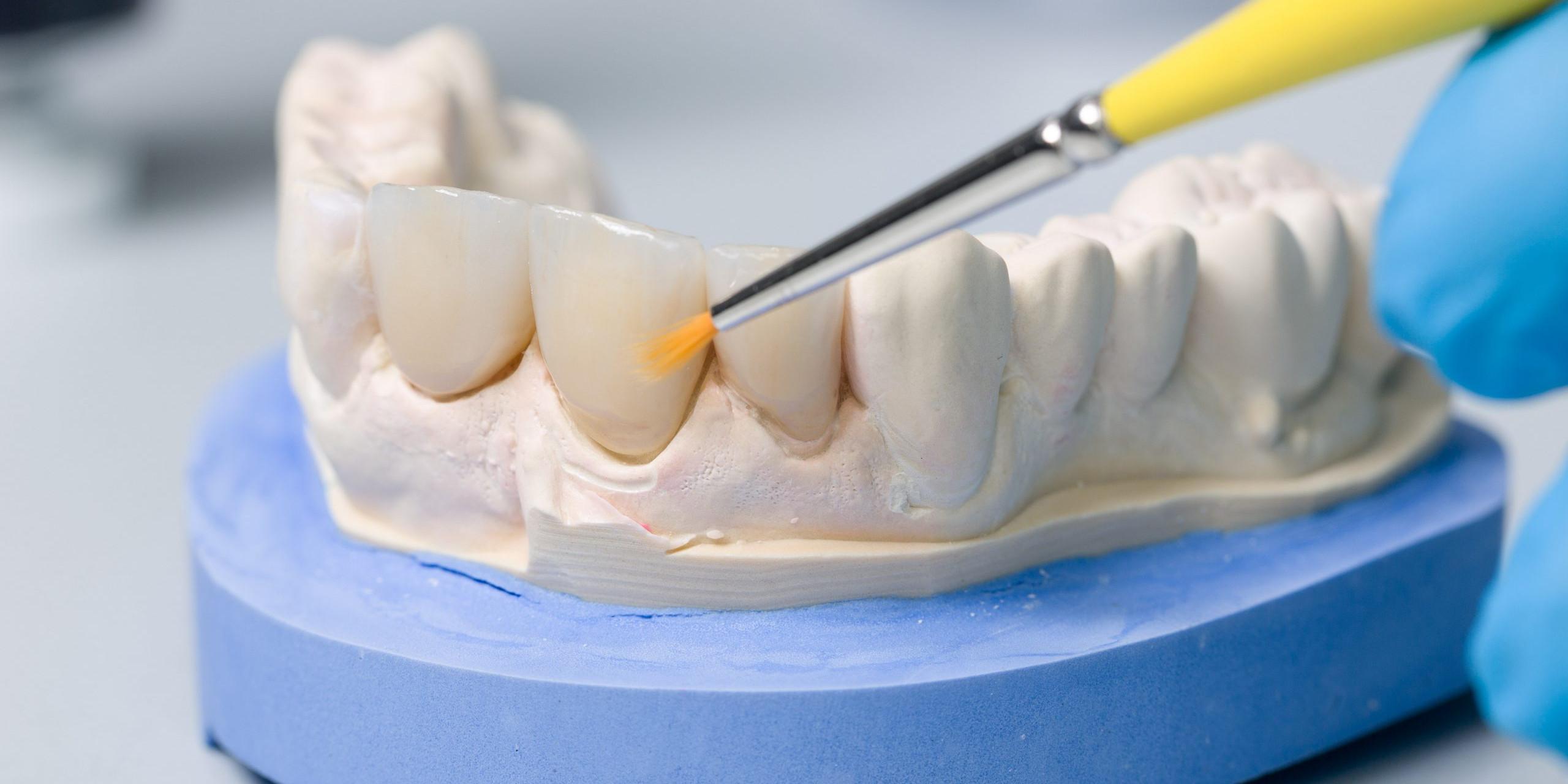 Farbliche Bearbeitung eines Zahnersatzes im Dentallabor
